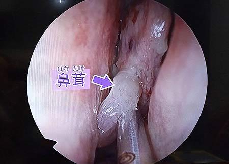 鼻茸の写真